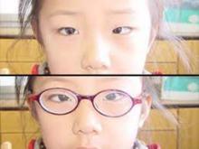 斜视眼镜的配镜方法