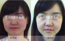 改脸型手术对比图