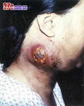 老鼠疮图片 老鼠疮是什么病 老鼠疮早期图片大全 老鼠疮的症状图片