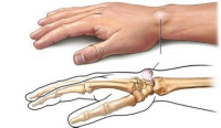 腱鞘炎通俗的说就是腱鞘发炎了图片