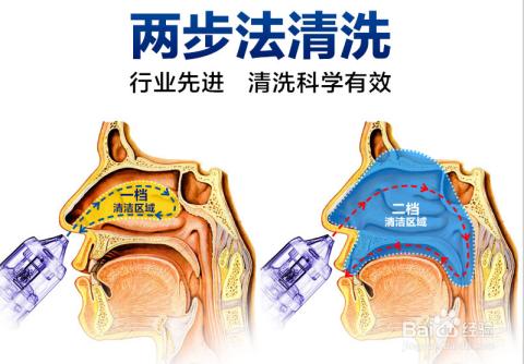 鼻窦炎怎么治_治疗鼻窦炎盐水洗鼻是个好方法