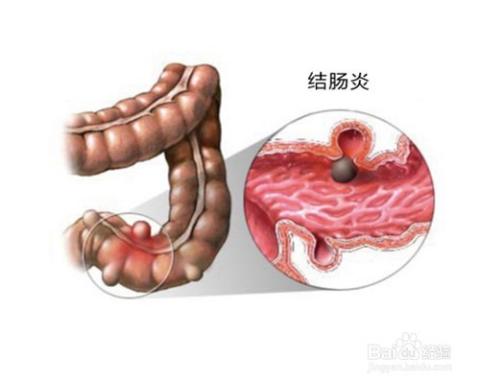 如长期腹泻伴有大便带血或粘液者,检查肠镜是否是溃疡性结肠炎,是可