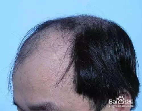 脱头发吃什么药好