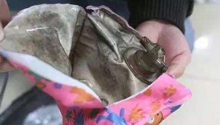 成都:充电热水袋爆炸 烫伤四个月女婴