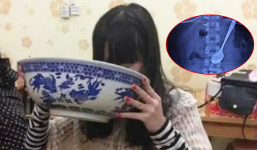 女子吃饭太急 20cm长勺竟吞下肚