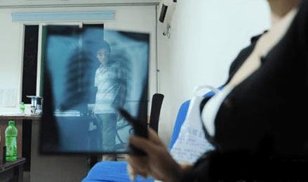 X光片被医生张冠李戴 患者索赔6亿元