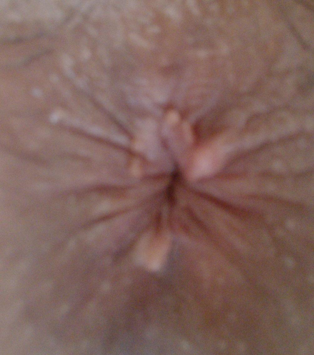 我肛门口长了几个疙瘩
