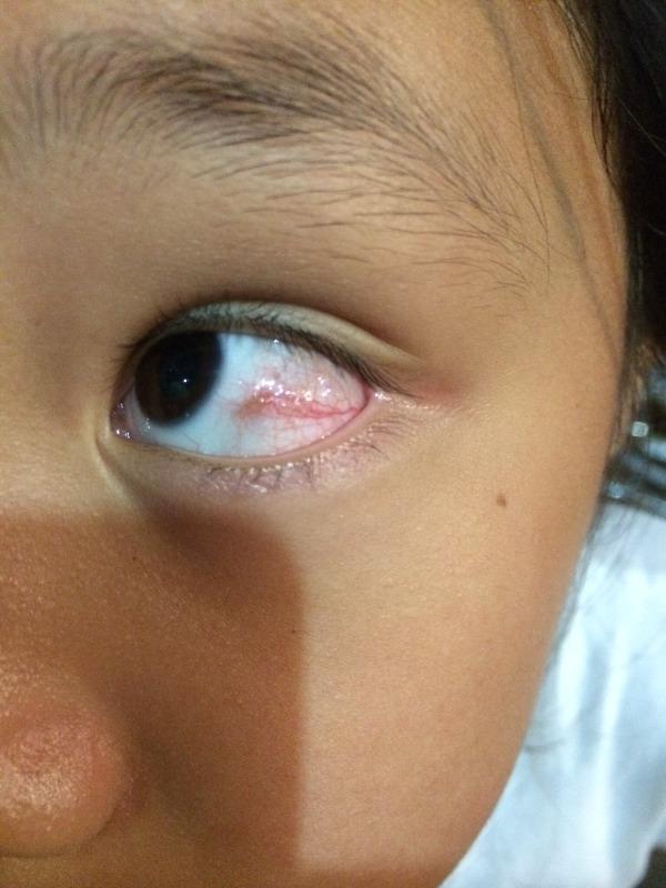 眼睛充血_当时眼球红了,充血.