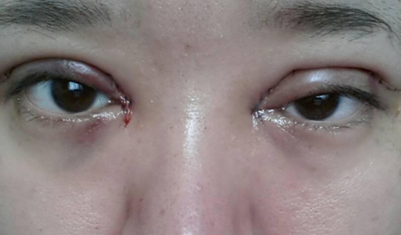 问:昨天刚做的全切加开眼角,今天起来摘下纱布发现左眼很肿.