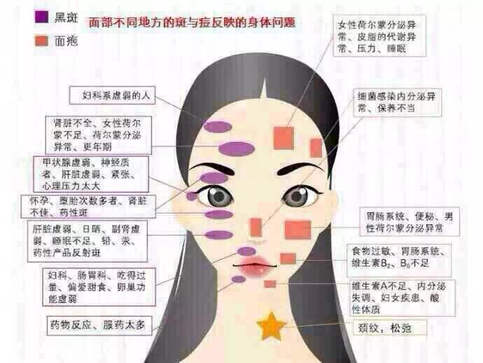 痘痘形成的原因_经国际医学研究表明形成痘痘有四条因素有关:1,毛囊皮脂腺导管细胞
