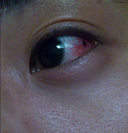 白内障眼球图片_我妈妈眼睛里有黑点,是不是白内障呀,用什么牌的眼药水好呀
