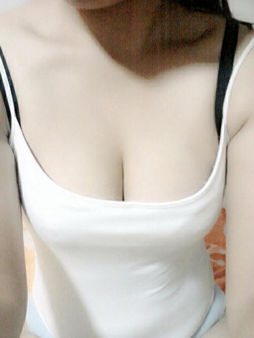 注射隆胸失败仹i#_今年37岁,在03年结婚前进行的注射奥美定隆胸.