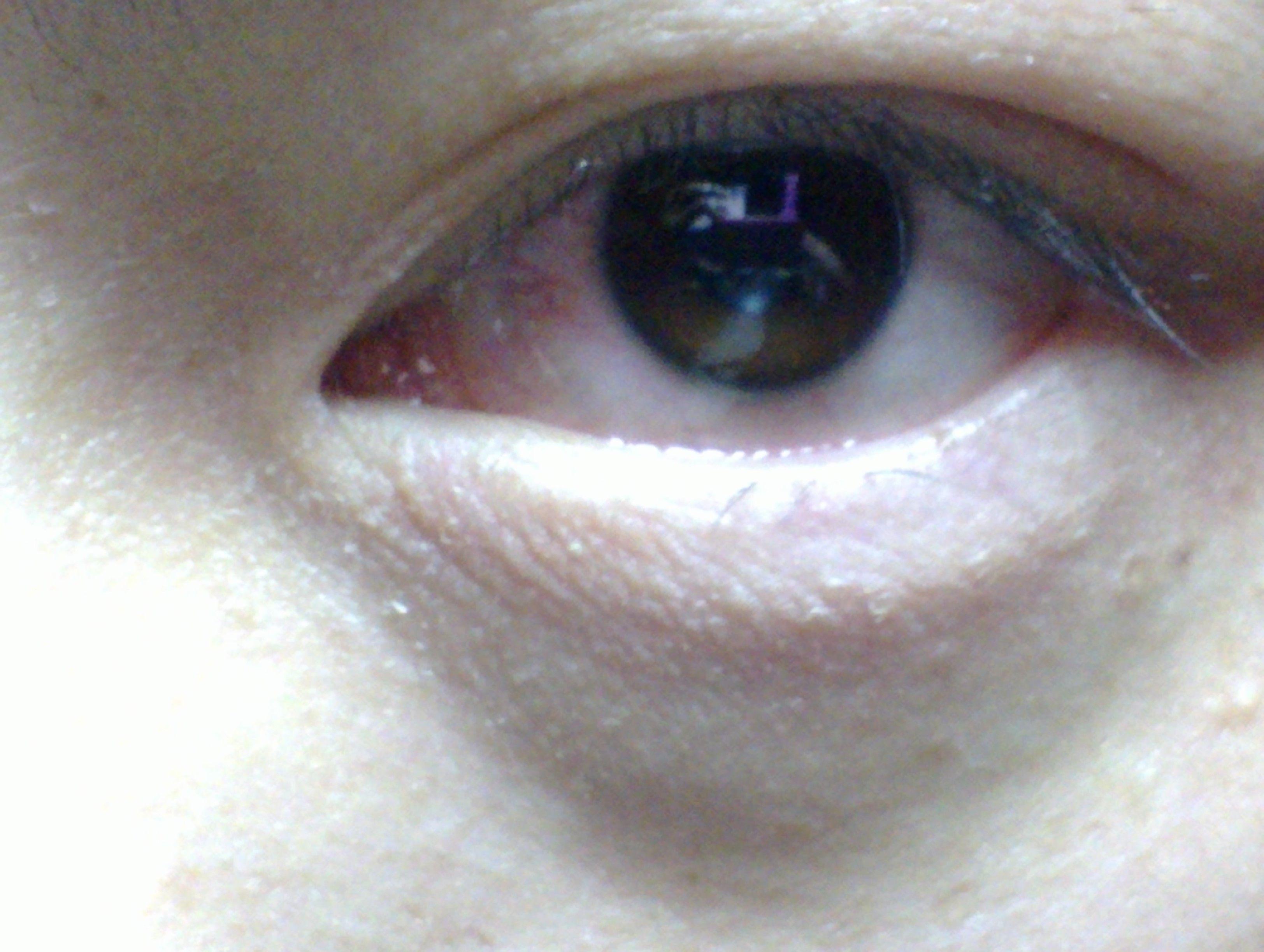 内眼角痒用什么药
