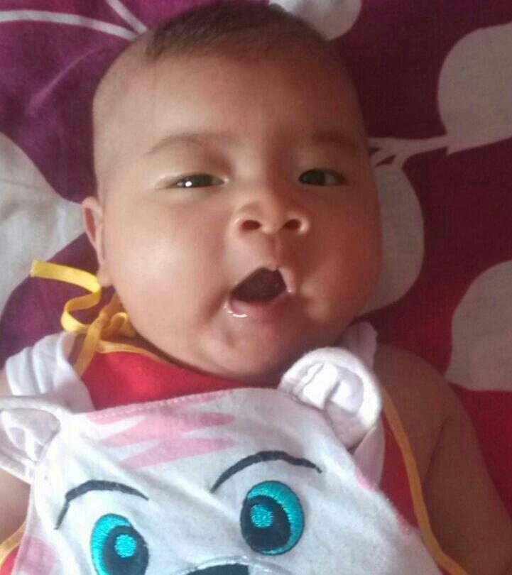 宝宝20天了黄疸图片_宝宝黄疸要注意了