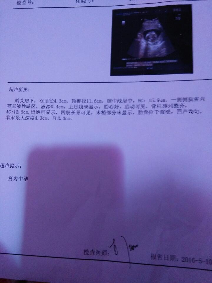 怀孕四个月的b超单,医生让过三周再去查一下,请问宝宝图片