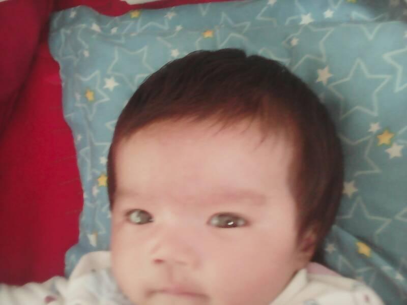 我家宝宝额头两侧头发很少怎么 (800x600)-请问宝宝额头上长的是