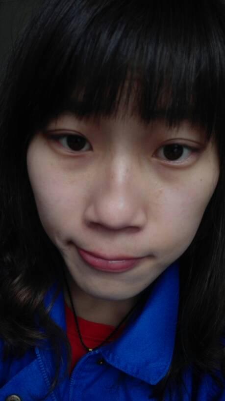 脸上有小米粒疙瘩_最近一个月脸部起了小米粒大小的痘痘,密密麻麻的,不红不痛不痒.该