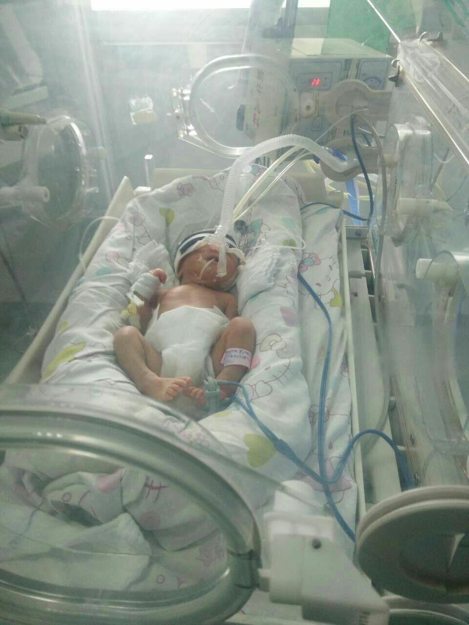 你们的早产宝宝出生有多少斤?图片