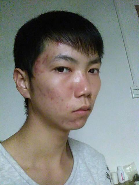 什么脸蛋的男生适合三七分发型啊?(像下面的发型)图片