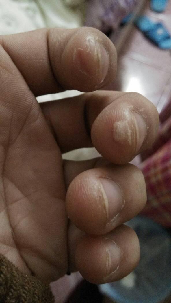 我的手是怎么了,非常疼.有图片,请问是