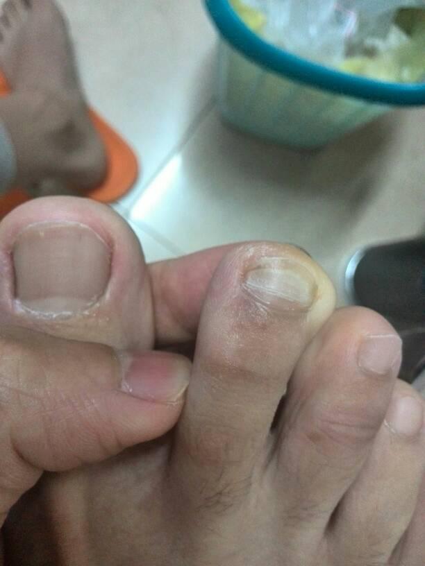1回答 我手指甲长出来都是凹凸不平,请问是什么情况引起的呢?图片