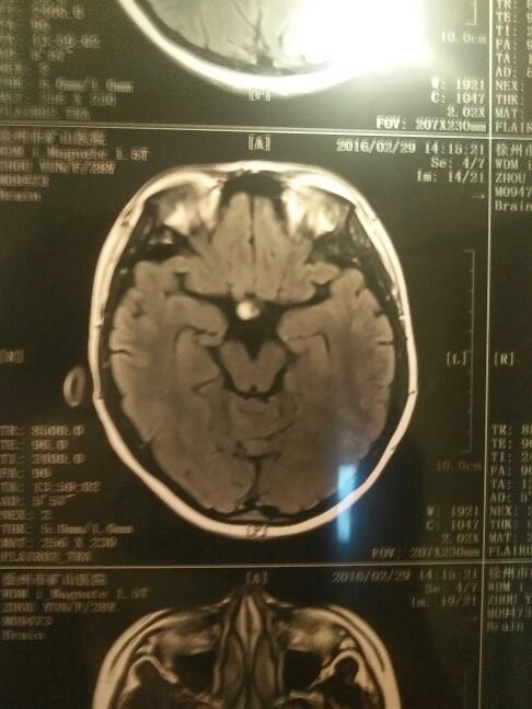 今天拍了脑颅ct和脑部磁共振,排除脑血管瘤,片子如下图片