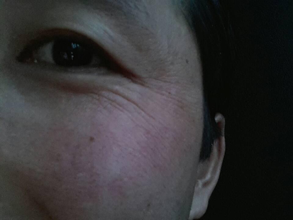 标本兼治皮肤过敏图片