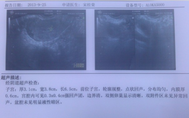 宫口息肉图片_检查出宫腔息肉,请帮忙看看我还能怀孕吗,宫腔息肉和宫颈息肉是一回事