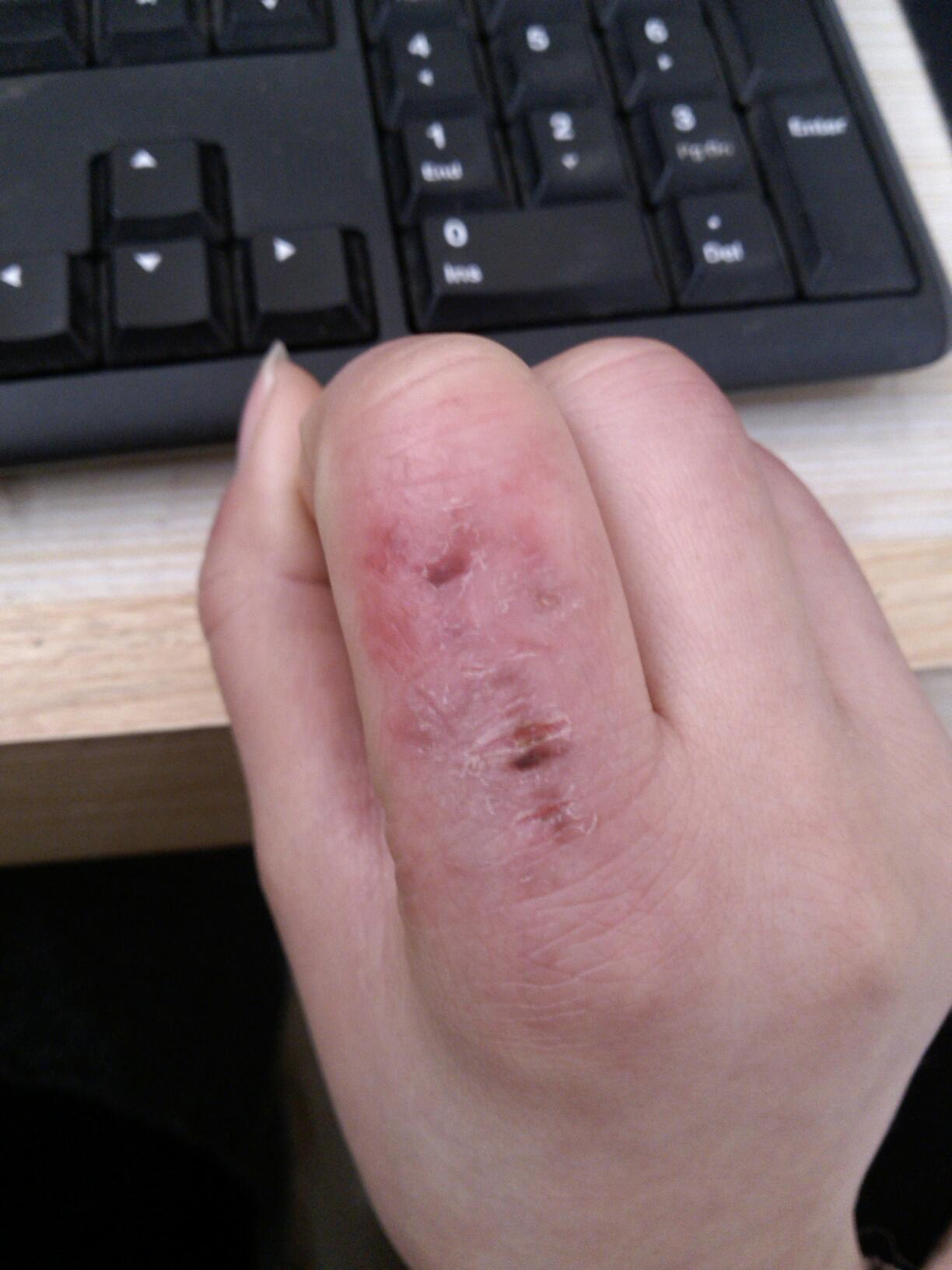 我的手一到冬天就会长冻疮并且呈红色,手很