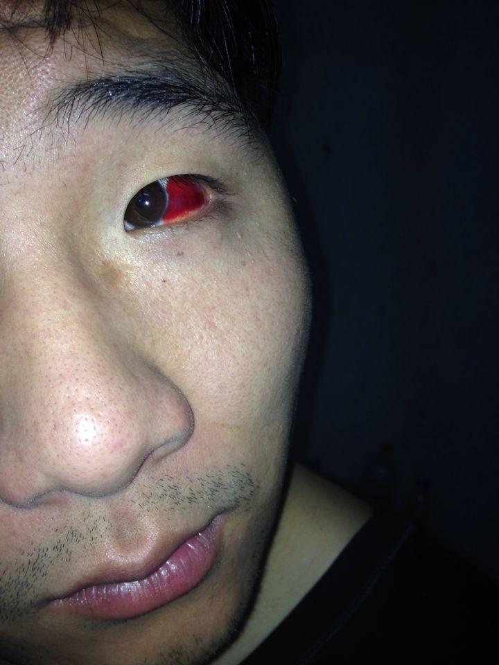 眼睛充血但是不痛不痒_眼睛突然充血发红,但是不疼不痒,请问是什么原因