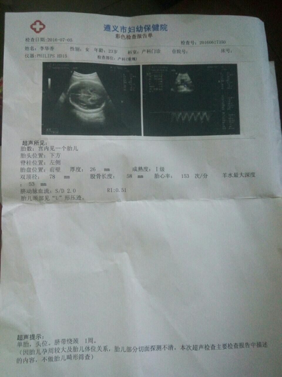 怀孕七个月了一直感觉是男宝宝 今天验证了男宝宝一个图片