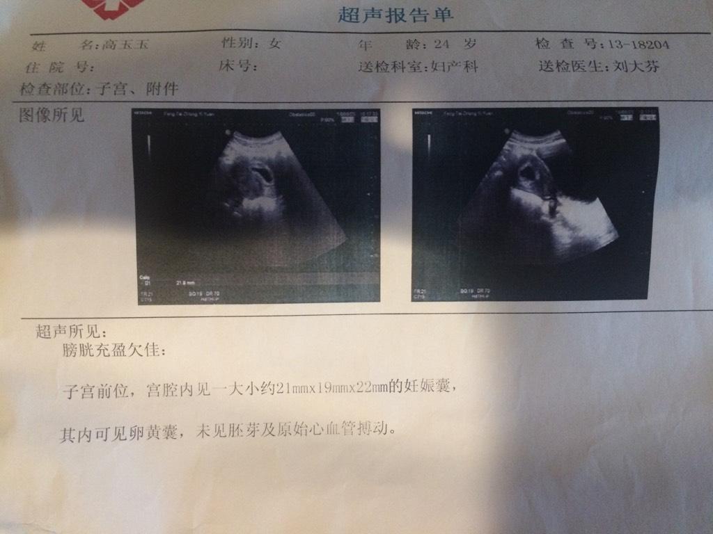 怀孕36周宝宝胎心180正常吗