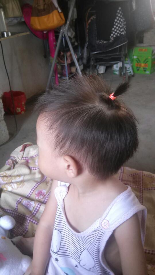 我替宝宝扎头发她就喊疼,是不是扎的方式不对图片