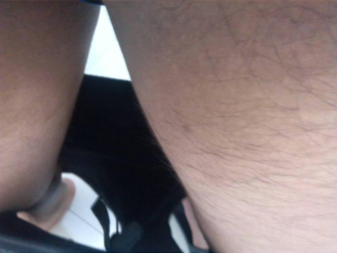两腿之间靠近生殖器的地方怎么是这种颜色?