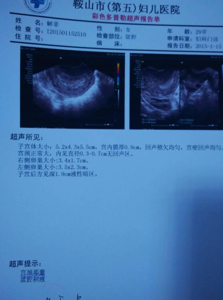 我怀孕6个月胎儿畸形做的引产,今天第50天,没有什么不不适的症状肚子图片