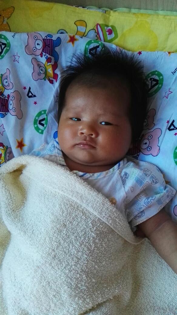 宝宝20天了黄疸图片_宝宝的黄疸怎么办?