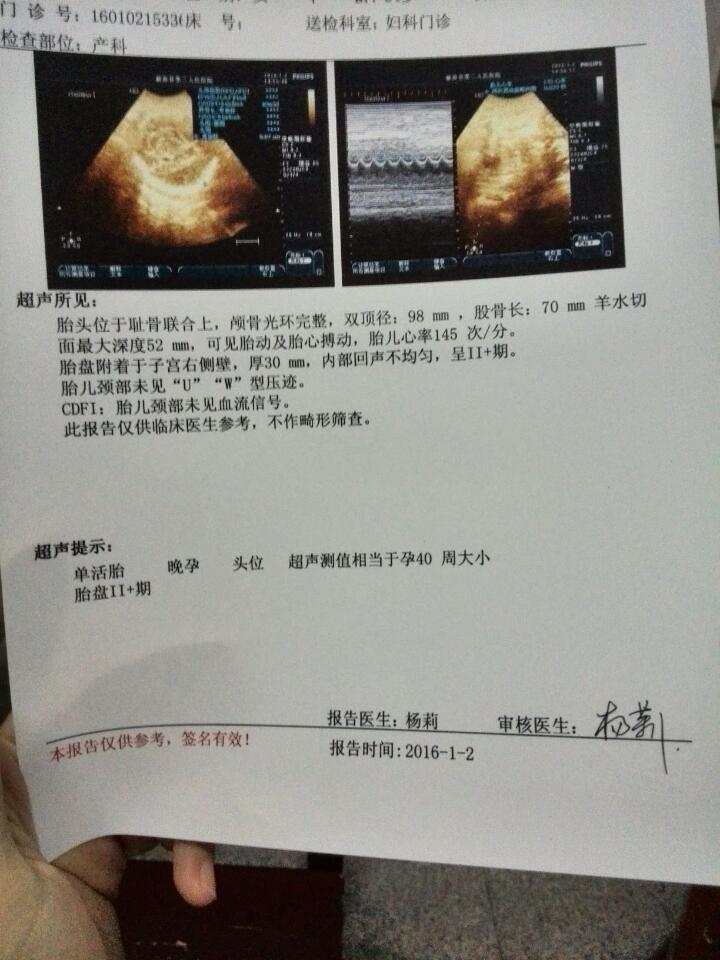 三十五周加四天,b超显示是四十周 ,胎儿头大正常吗