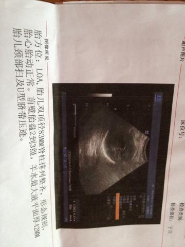 38周b超数据看男女_孕38周宫高32c m,是不是胎儿有的小?_百度知道