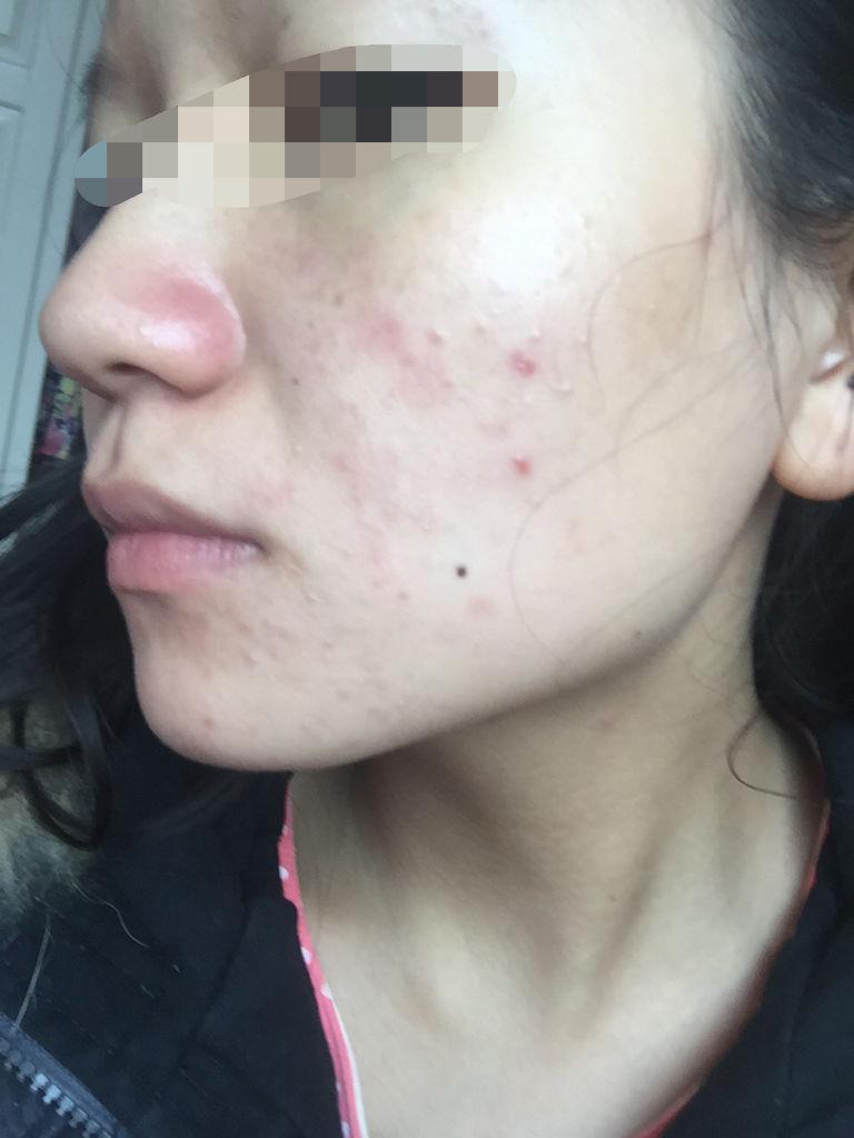 脸上有小米粒疙瘩_最近我脸上长了好多小痘痘,却只长右边脸上,请问是青春痘还是天气原因