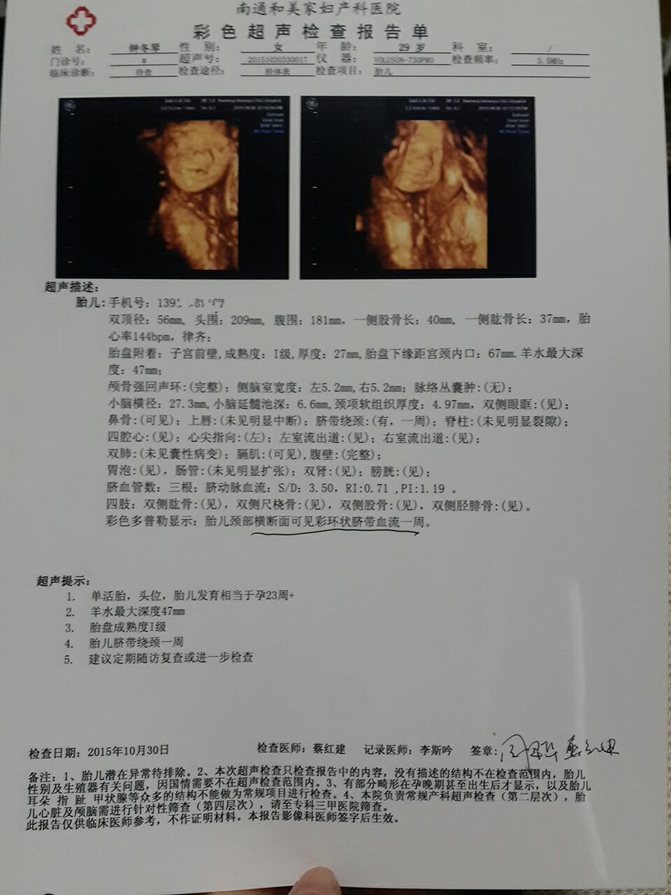 孕期是23周四维彩超显示孕期23周后图片
