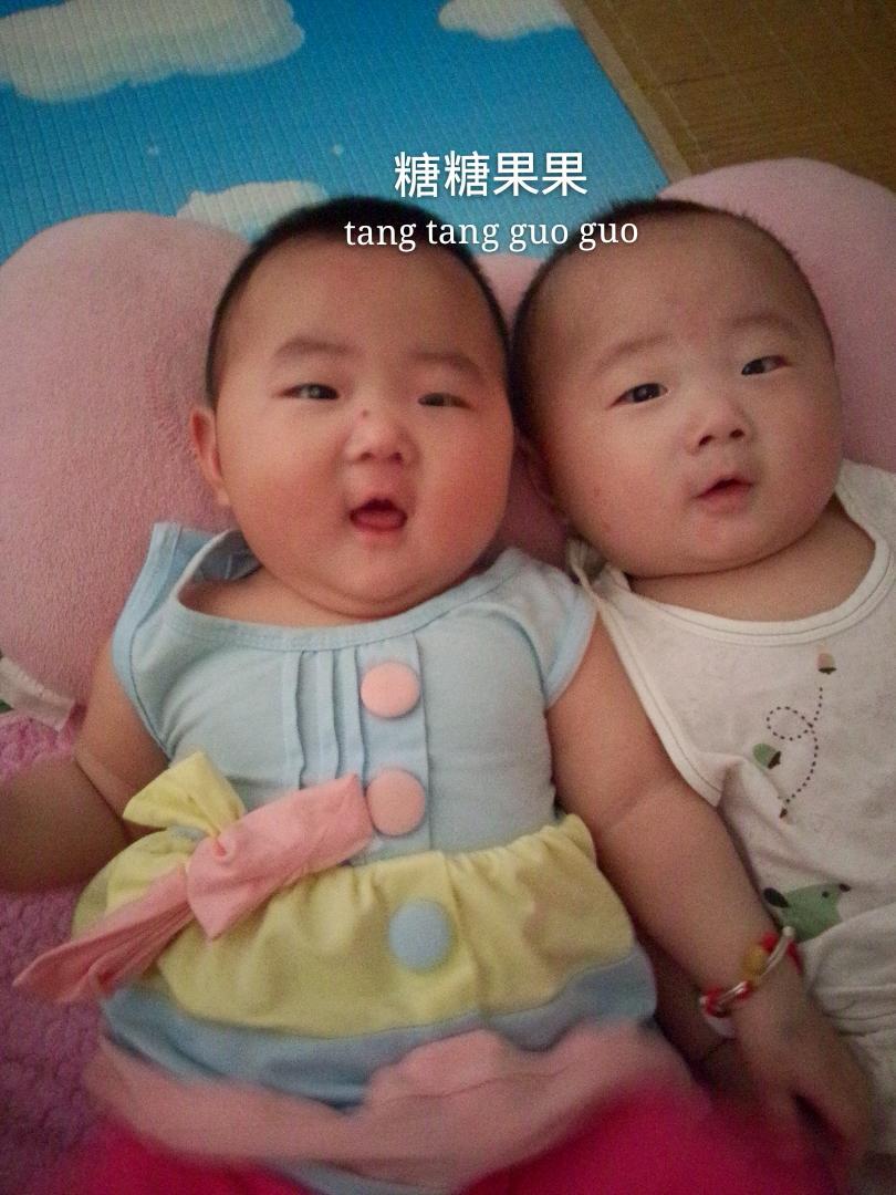 四个月宝宝头发稀少怎么办分享展示图片