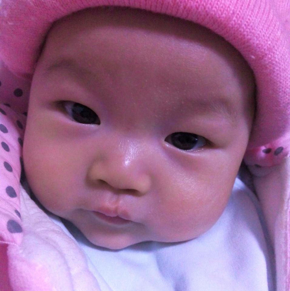 婴儿前额头发稀少图片展示图片