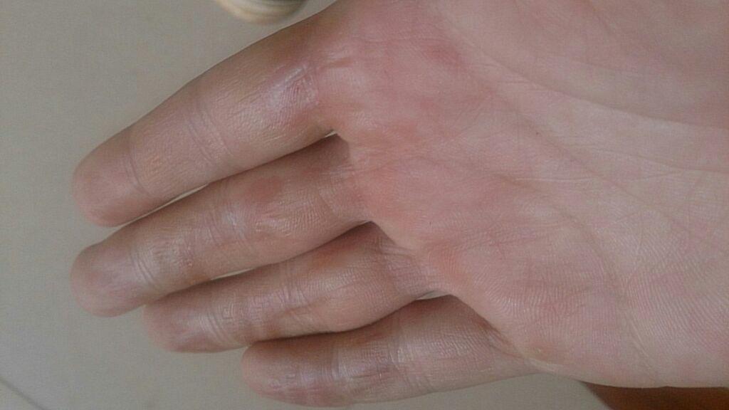 手被蒸烫伤怎么办_4根手指被烫伤了