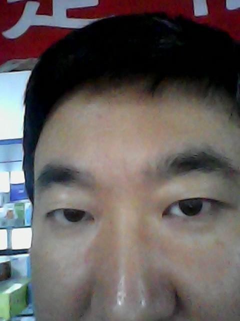 去掉悬针纹_不知道眉头舒展点会不会好点,一条纵纹是斩子纹, 也称之为悬针纹,一条