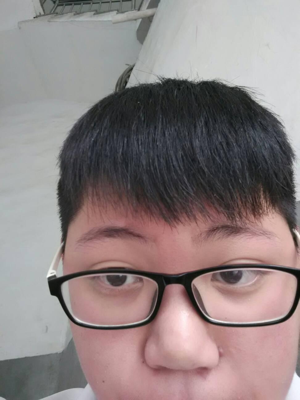 头发前面尖尖的怎么办图片