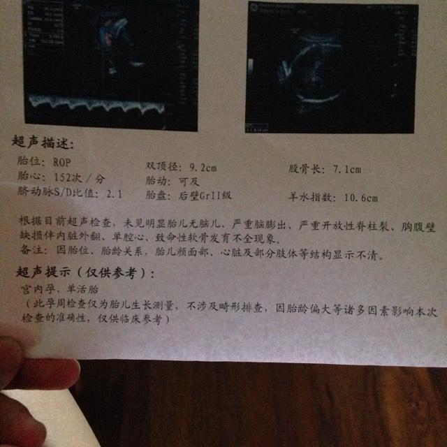 怀孕36周做b超医生说胎儿大一两周的样子会提前生吗