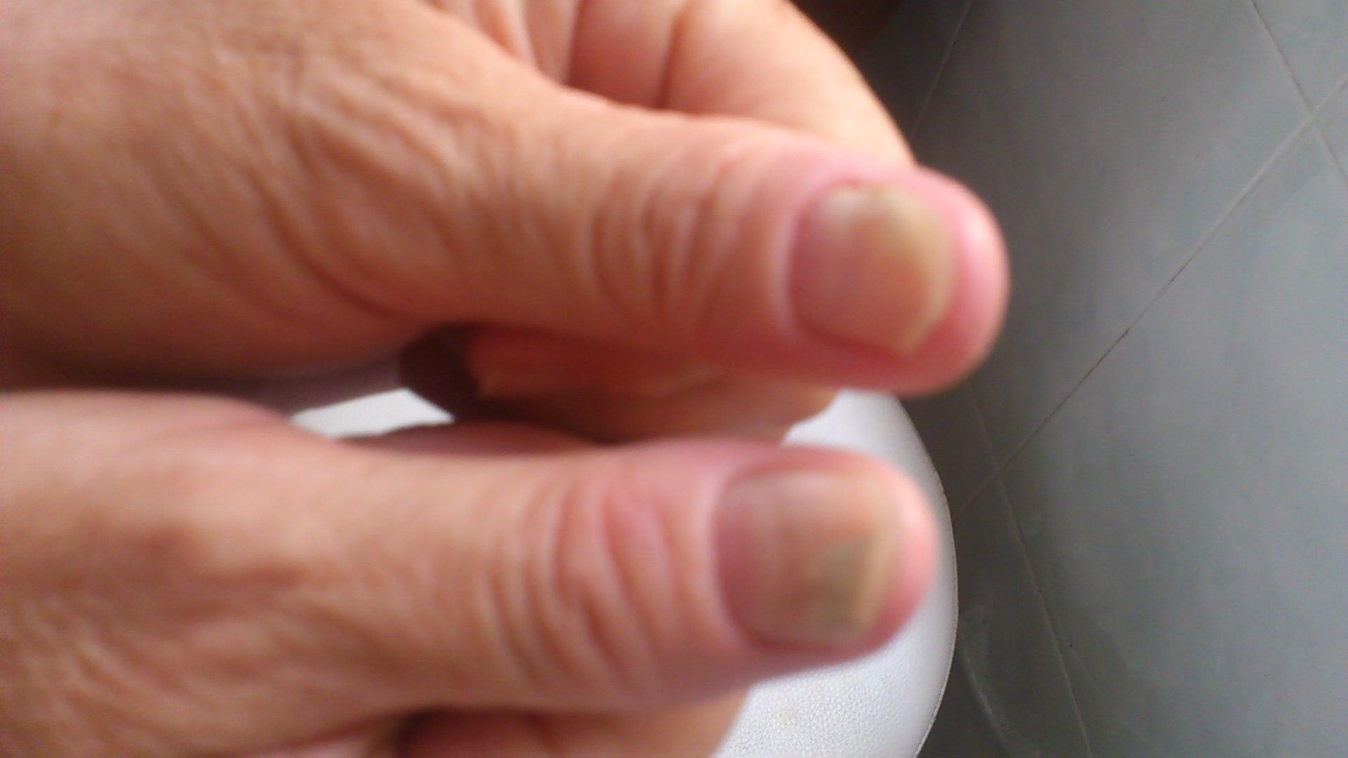 这是灰指甲吗?要怎么治疗?这是灰指甲吗?要怎么治疗?