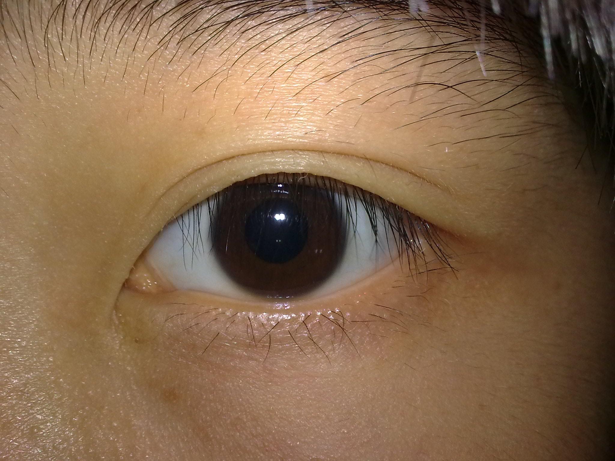 眼睛充血_有着这样的眼睛的人有什么性格?