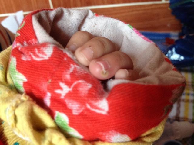 宝宝的手指甲旁边怎么了?里面像脓包一样怎么办呀?图片