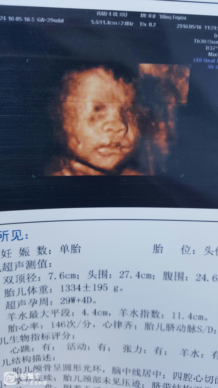 宝宝四维跟出生照片大对比,还是挺像的,哈哈图片